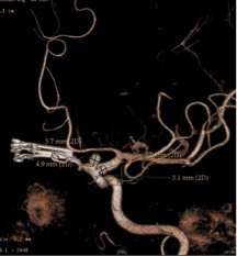 intracerebral-aneurysms