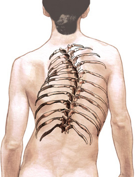 adult scoliosis of the spine