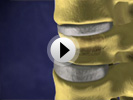 VCF Spinal Fracture Animation